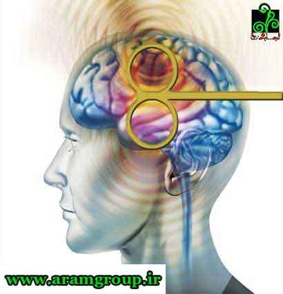 مغناطیس درمانی-دکتر آرام-تجسم خلاق