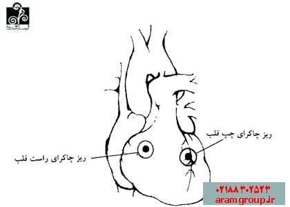 پروتکل انرژی درمانی بی نظمی ضربان قلب. دکتر آرام,تجسم خلاق,خلق آینده